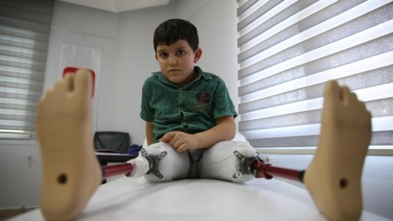 Suriyeli Abdulbasit ayağa kalkacak