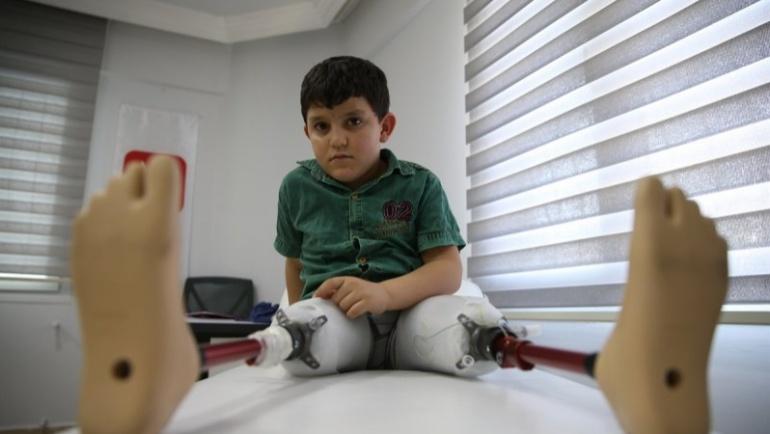 Ortez-Protez Projesi – Abdulbasit'in Hikayesi