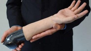 Suriyeli çocuğun protez el hayali gerçekleşti