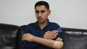 Türkiye'de protez koluna kavuştu