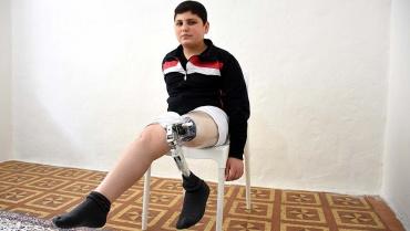 Suriyeli Yusuf protezine kavuştu