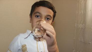 Suriyeli Muhammed hayali olan protez eline kavuştu